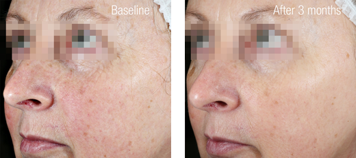 Ultimate C15+ Firming Serum Result